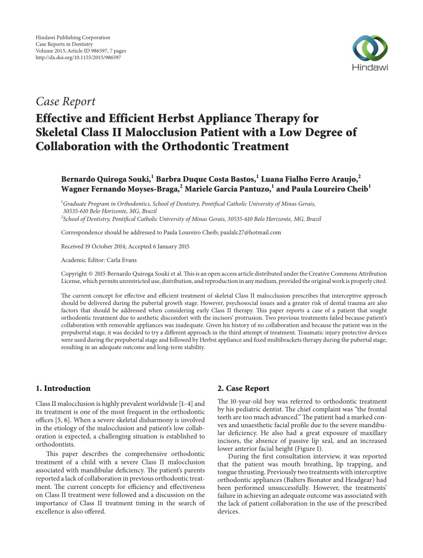 Herbst Appliance Pros and Cons Pdf Effective and Efficient Herbst Appliance therapy for Skeletal