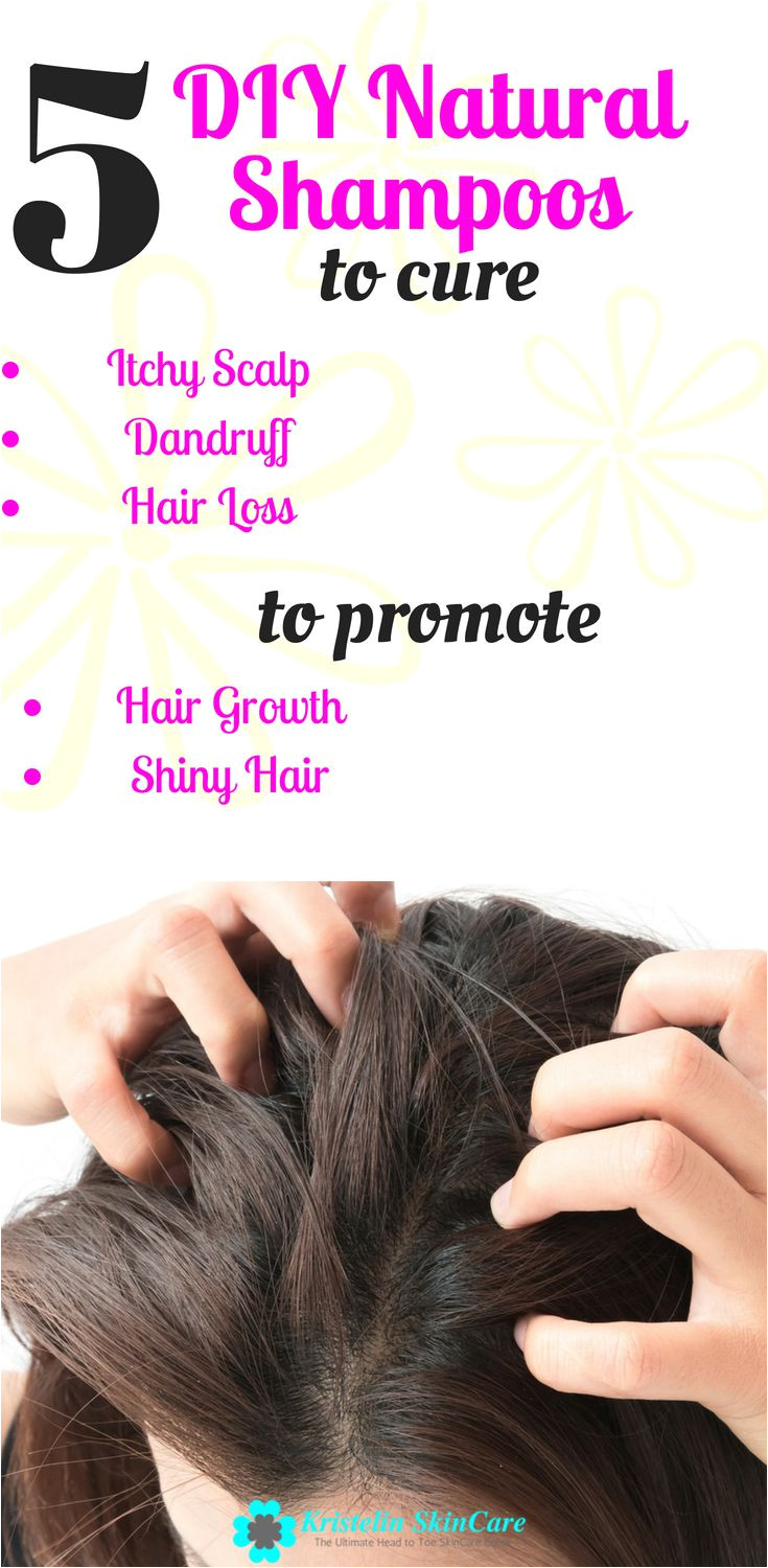 natural shampoos are a great way to fix scalp problems for healthy hair growth