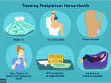 Best Pads for Bleeding after Delivery Hemorrhoids after Giving Birth at Home Treatments