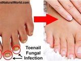 Colloidal Silver Nail Fungus 25 Best Ideas About toenail Fungus Home Remedies On