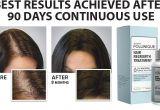 Follinique Hair Growth Reviews Follinique Reviews Advance Minoxidil Fda Approve Hair