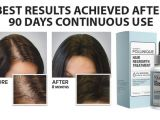 Follinique Hair Regrowth Treatment Follinique Uses Side Effects Price Interactions and