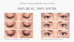 Latisse Vs Rodan and Fields Lash Boost Longer Fuller Lashes Yes Please Gbo Fashion
