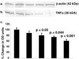 Spectrum Labs Quick Fix Plus Instructions the Flavonoid Quercetin Inhibits Proinflammatory Cytokine Tumor